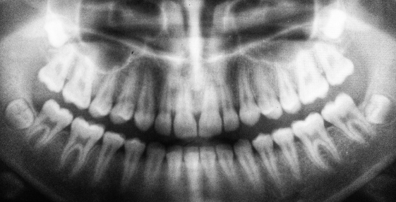 19th Century Dental Milestones